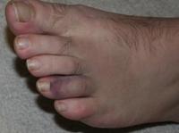 Her_dads_broken_toe_2